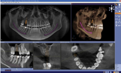 state of the art implant procedure