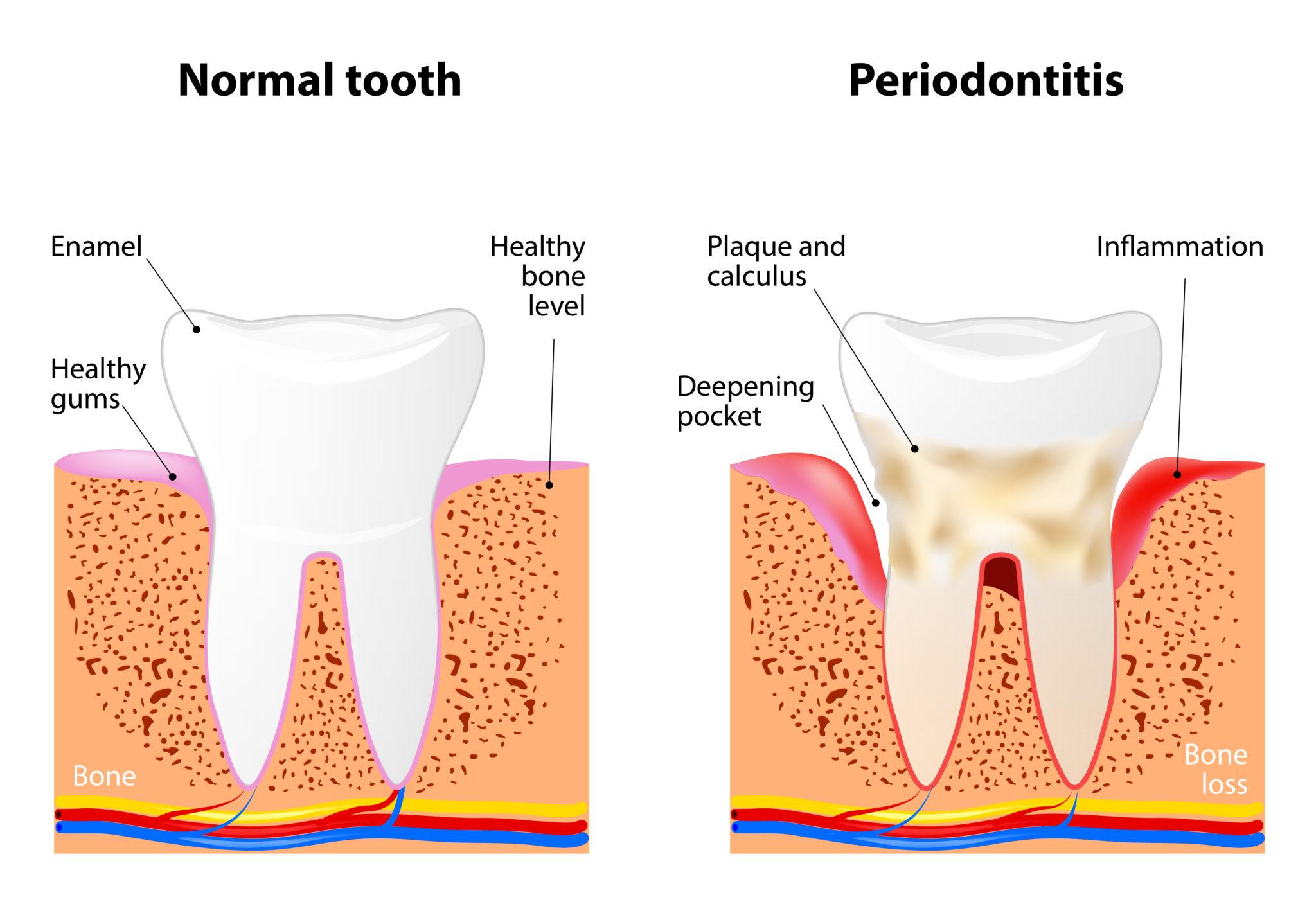 Periodontitis National Gum Care Month Montee & Montee Dental Co Nashville, TN
