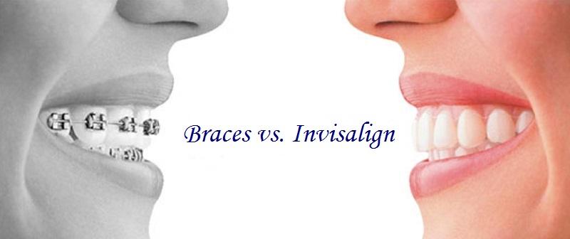 Braces vs Invisalign Green Hills Dentist