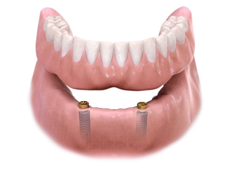 All-On-4 Dental Implants - For patients who no longer wear conventional dentures because they don't fit correctly or they constantly slip around in your mouth, should consider implant dentures.