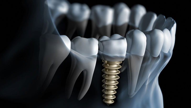 DENTAL IMPLANTS - A dental implant is a surgical, screw-like piece that is placed in the jaw to replace the roots of missing teeth, and to support and attach to realistic-looking, fully-functional replacement teeth called a crown or bridge. For patients who must replace missing or damaged teeth, the positive, life-changing results of dental implants are exactly what they have been looking for.