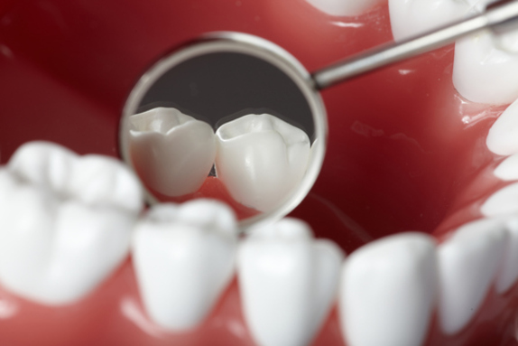 Crowns & Bridges - we provide dental crowns, or synthetic tooth-shaped covers placed on a tooth to strengthen a broken or worn down tooth or to help with the tooth's appearance. Contact us for more information.