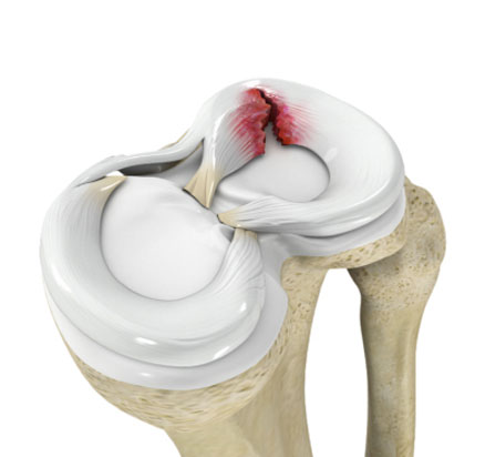 Meniscal-Tear-on.jpg