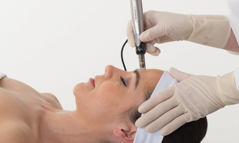 Dermapen③™ SKIN NEEDLING TREATMENTS Collagen Induction Therapy