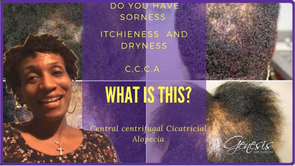 Central Centrifugal Cicatricial Aleopecia