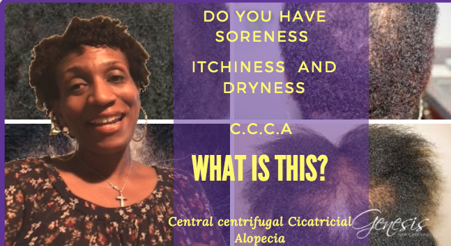 Central Centrifugal CiCatricial Aleopecia In Black Women