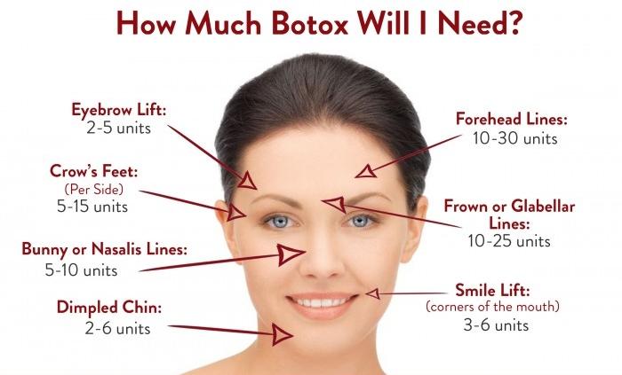Botox.jpeg