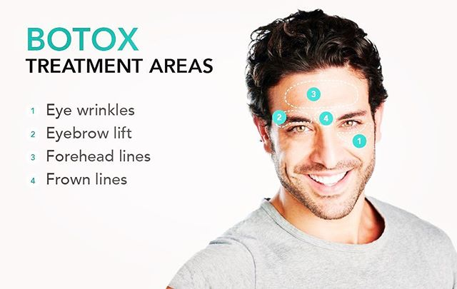 Listen up guys! Botox does give natural results and relaxes your lines. Workout your face to match your fit body!