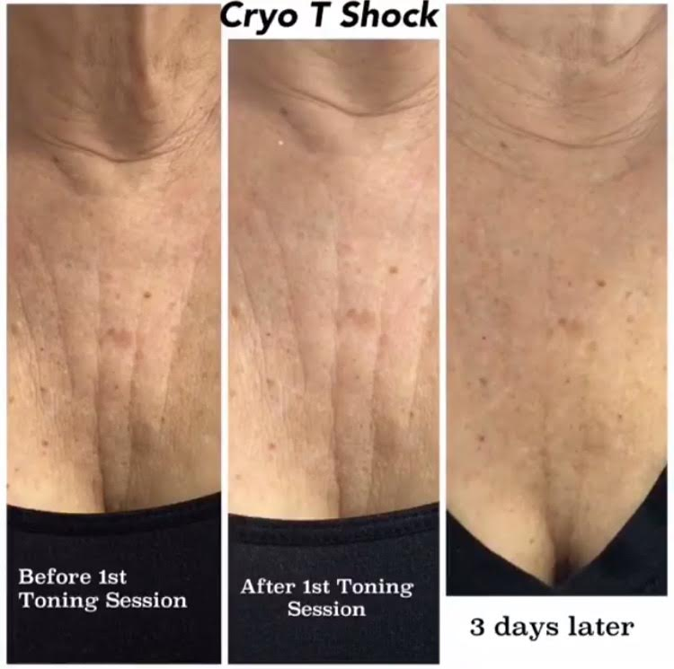 Cryo T Shock on the Chest