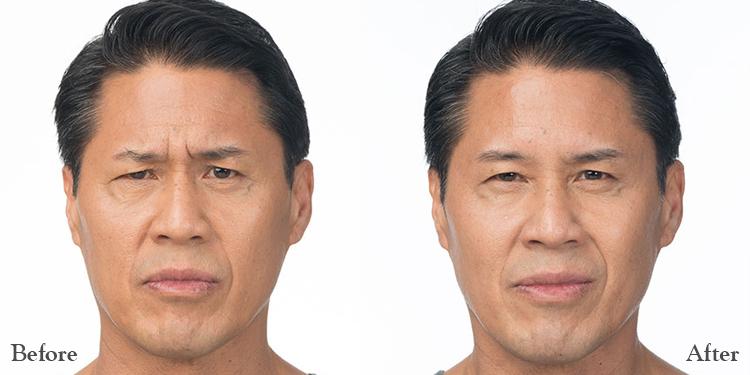 Botox B+A Man.jpg