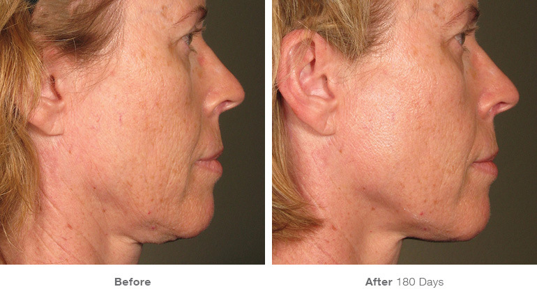 before_after_ultherapy_results_full-face15.jpg