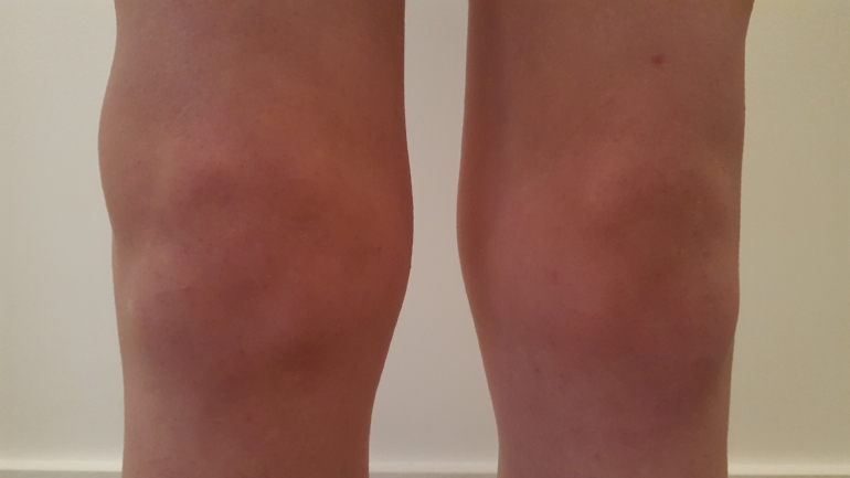 My knees looking better and when I could finally get up and about...still like chunky cauliflowers!