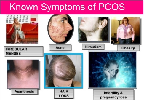 Known-Symptoms-of-PCOS.jpg