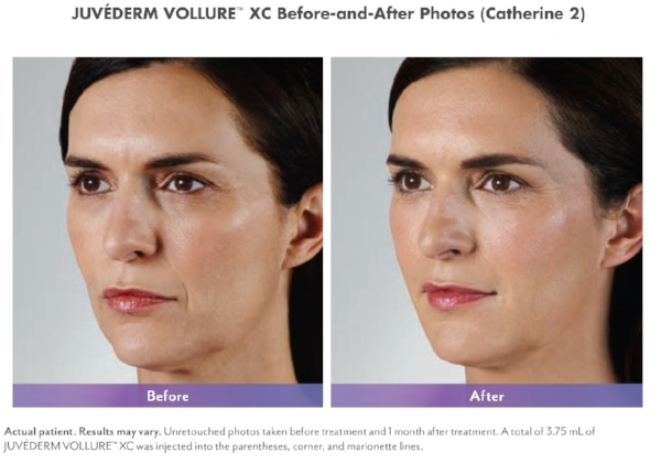 Juvéderm Vollure™ XC  softens moderate to severe facial lines and wrinkles to create a smoother appearance.