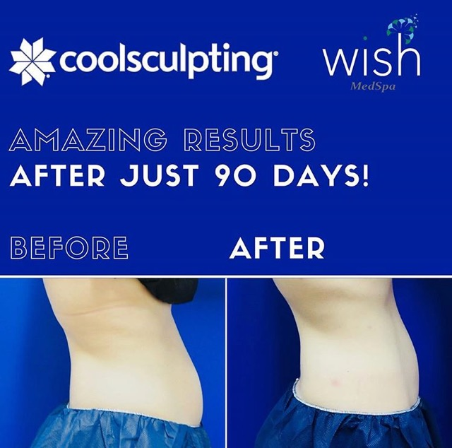 CoolSculpting®  results after 90 days!