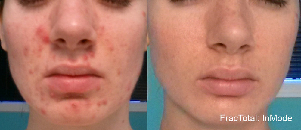 Fractora is effective for treating both active acne and acne scars
