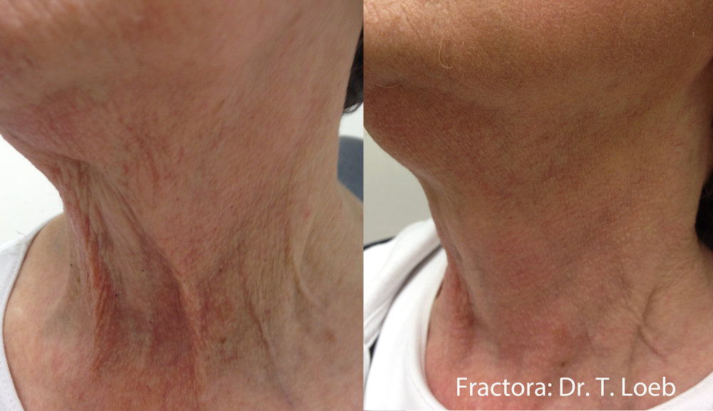 Fractora pierces the skin and heats the tissue. The result is mechanical shrinkage of the skin's foundation, resulting in a shink-wrapping effect