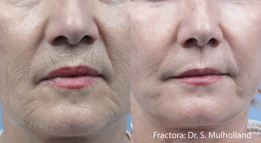 Fractora can reduce the appearance of fine lines and wrinkles, while improving skin tone and color