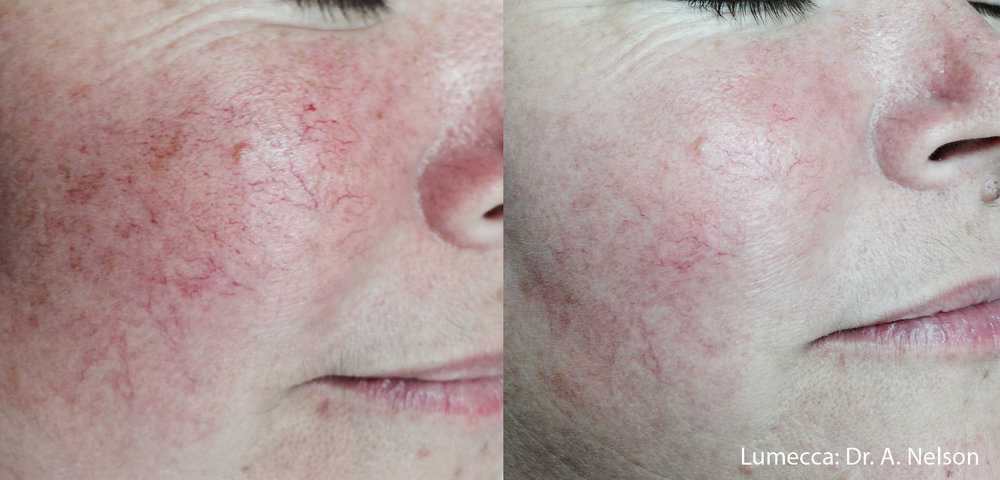 Rosy cheeks no more! Rosacea is addressed effectively with Lumecca