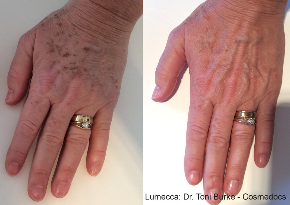 Skin changes of the hand are another telltale sign of aging. Erase the spots in the comfort of an examination chair.
