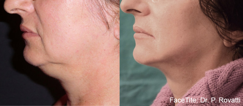 A facelift without scars? Believe it!