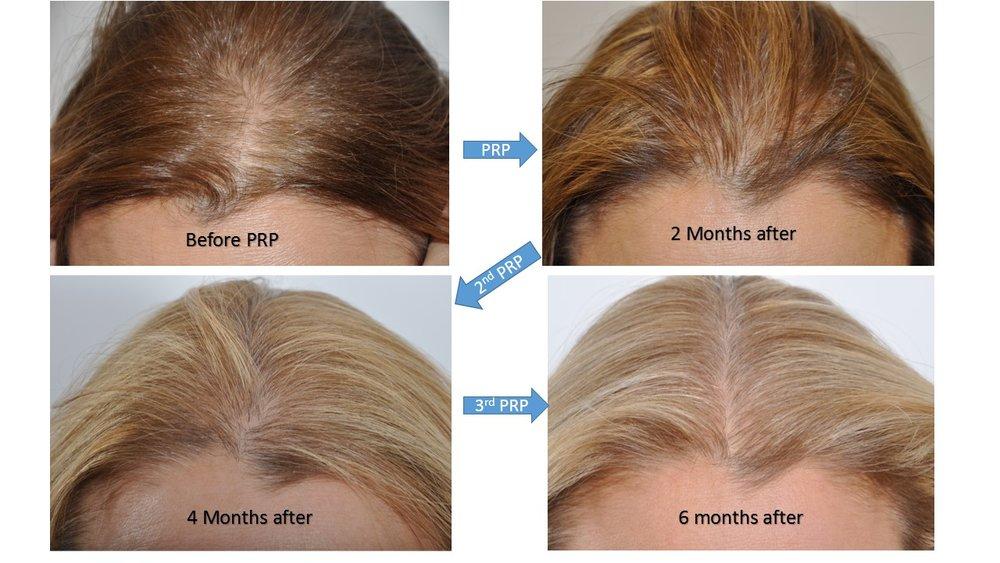 Image result for prp hair.jpg