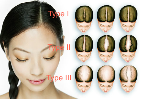 Women's Hair Loss comes in 3 stages.