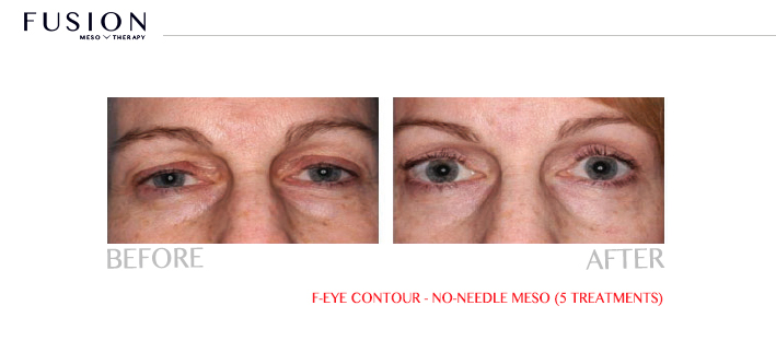 Remove Dark Circles Under Eyes Atlanta
