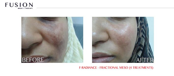 African American Acne Scar Treatment Atlanta