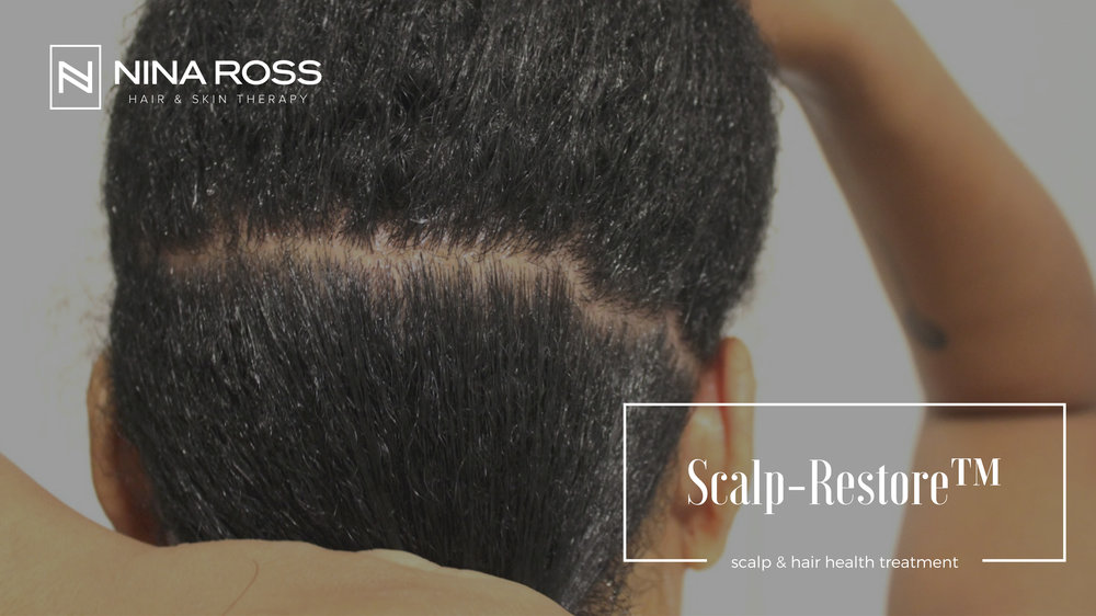 Copy of Scalp Treatment Atlanta