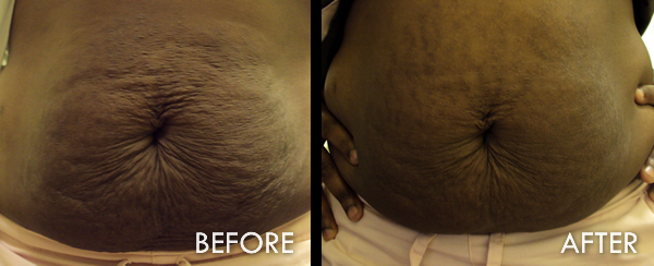 Before and After Strech Mark Treatment Atlanta