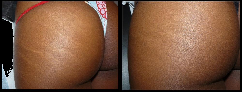 Legs and Butt Stretch Marks Atlanta Georgia