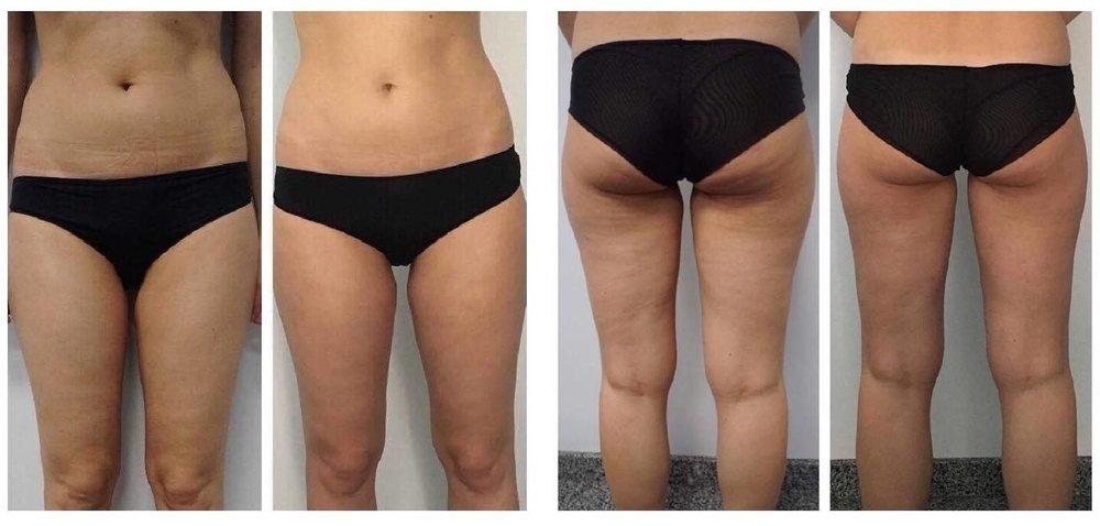 Stomach and Leg Cellulite Atlanta