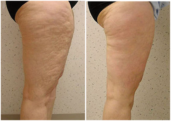 Outter and Inner Thigh Cellulite Atlanta