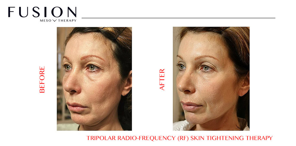 AtlantaRadioFrequencyFaceTreatment
