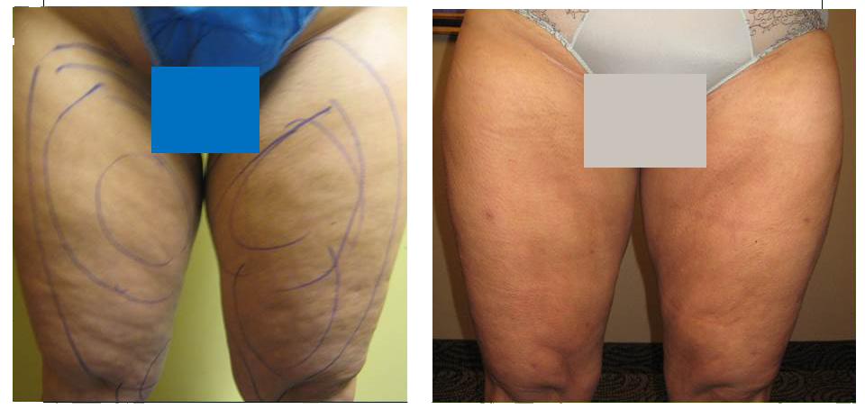 cellulite-reduction-3.png