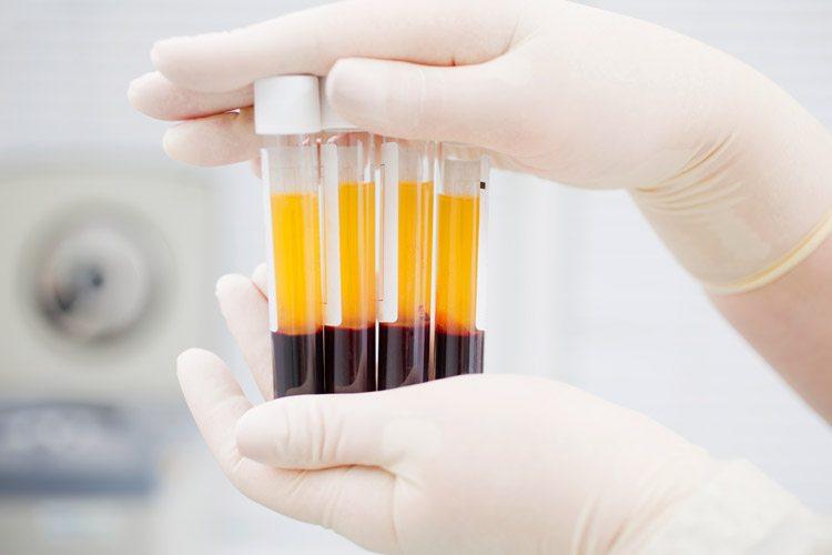blood-plasma-test-tube-ccl.jpg