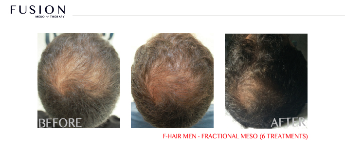 Fusion-BA-F-HAIR-MEN-FRACTIONAL-MESO-6-TREATMENTS.jpg