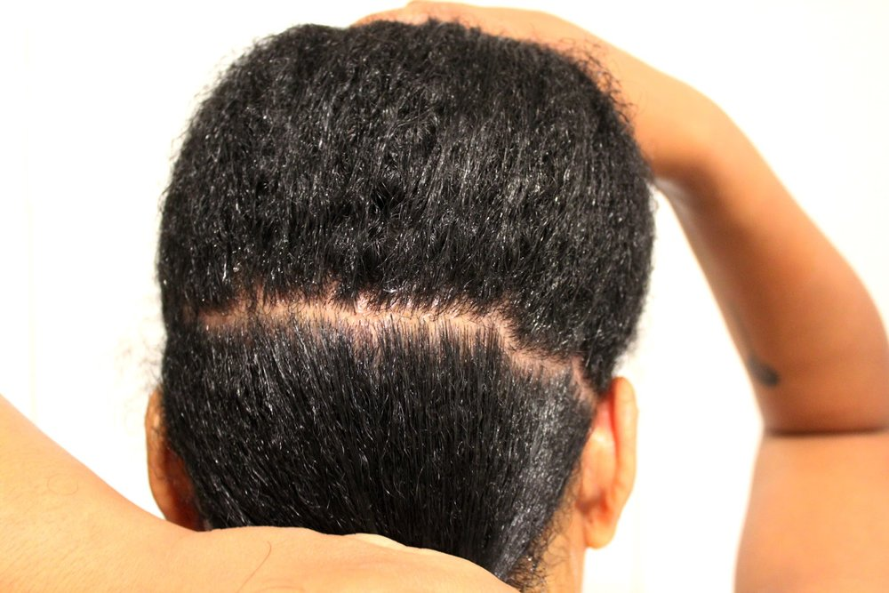 Oily scalp -