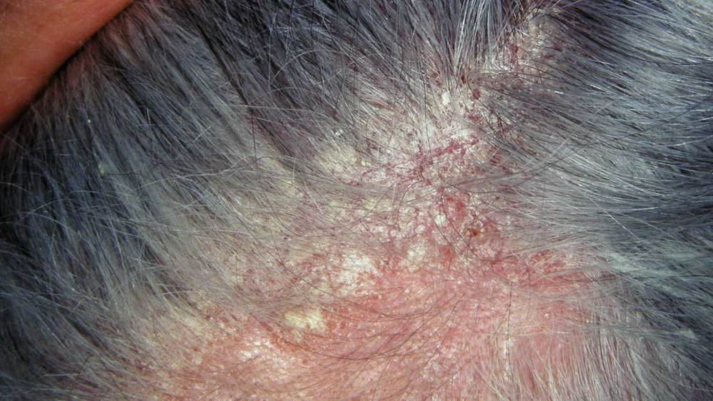 scalp dermatitis -