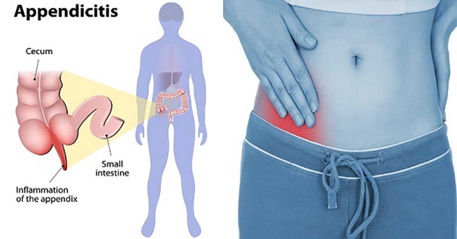 signs-of-appendicitis-918x482.jpg