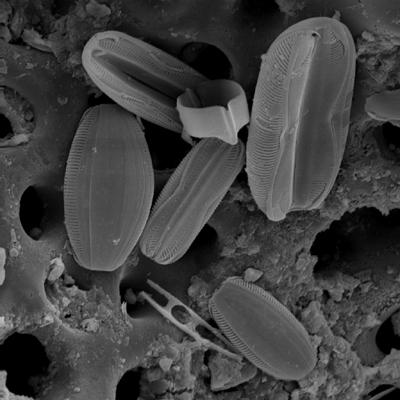diatoms, 775x