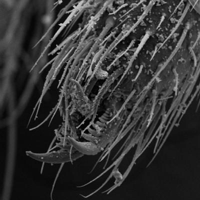 spider toe, 203