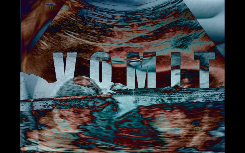 Vomit, Video Still, 2017.png
