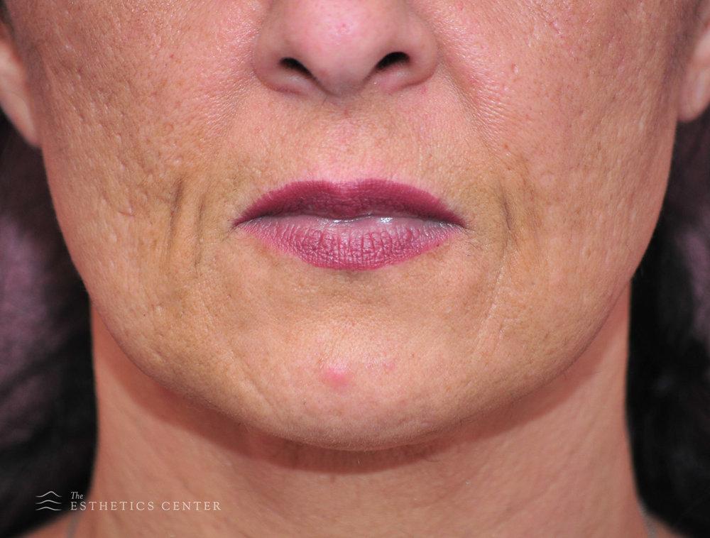 Acne Laser - before.jpg