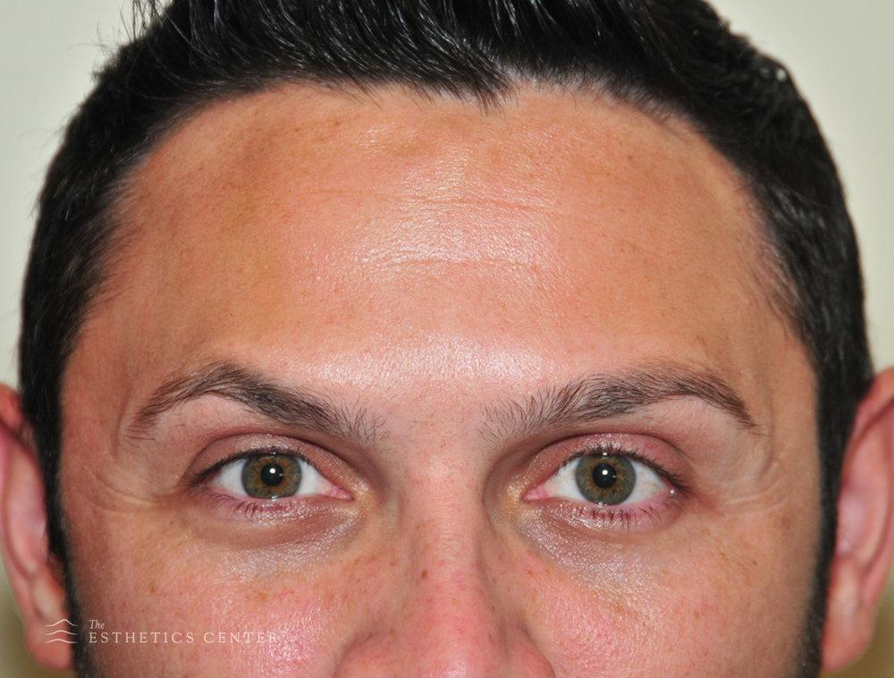 Botox 2 - after.jpg