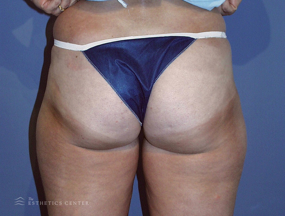 Thigh Lipo - before.jpg