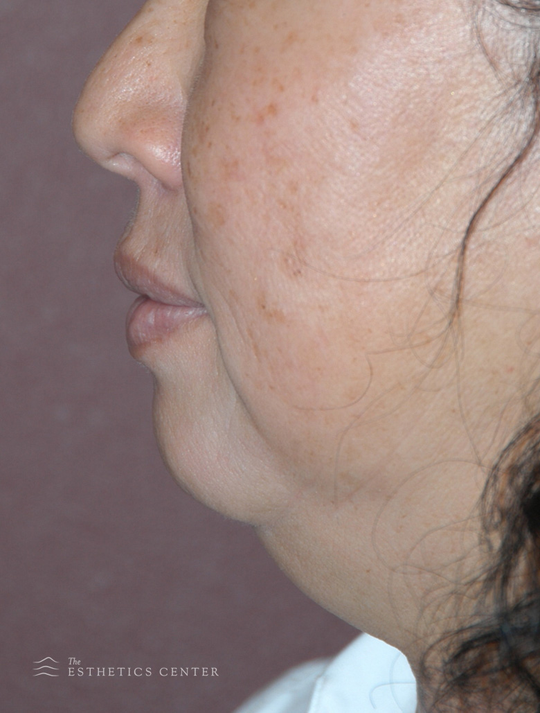 zChin Aug Chemincal Peel - before.jpg