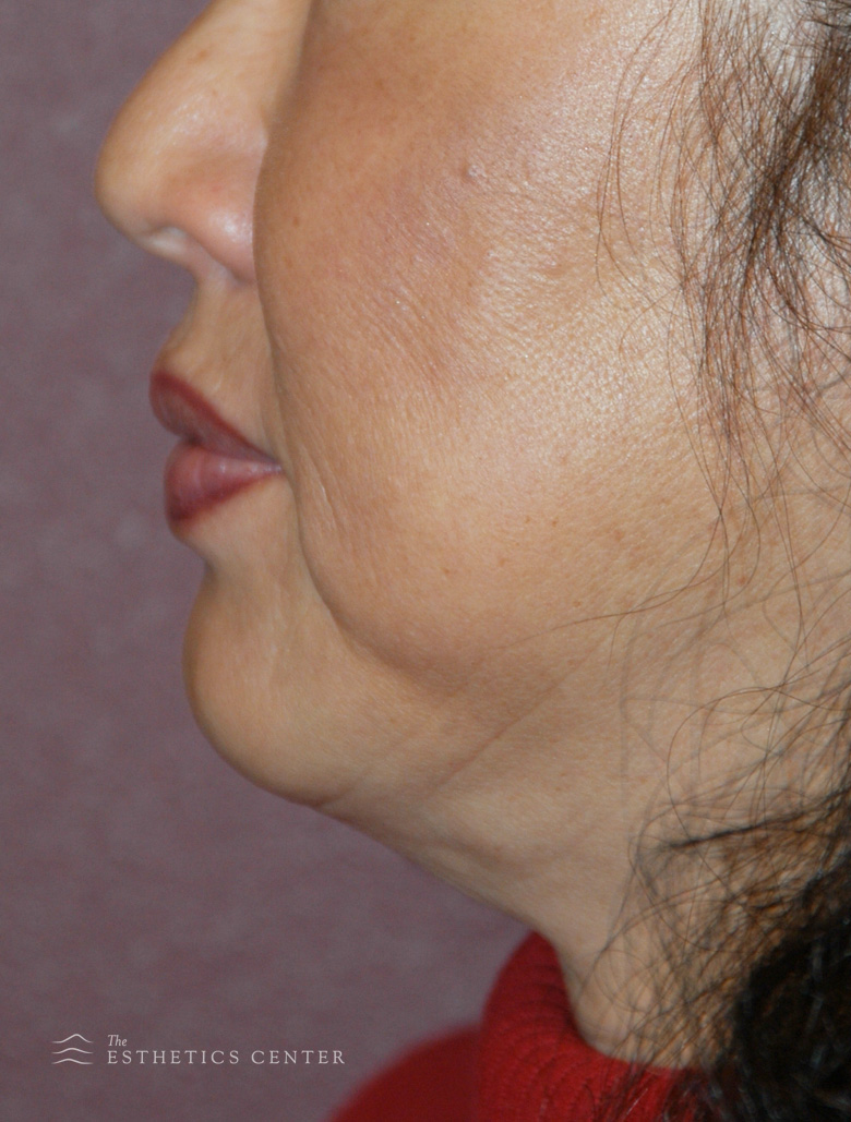 zChin Aug Chemincal Peel - after.jpg