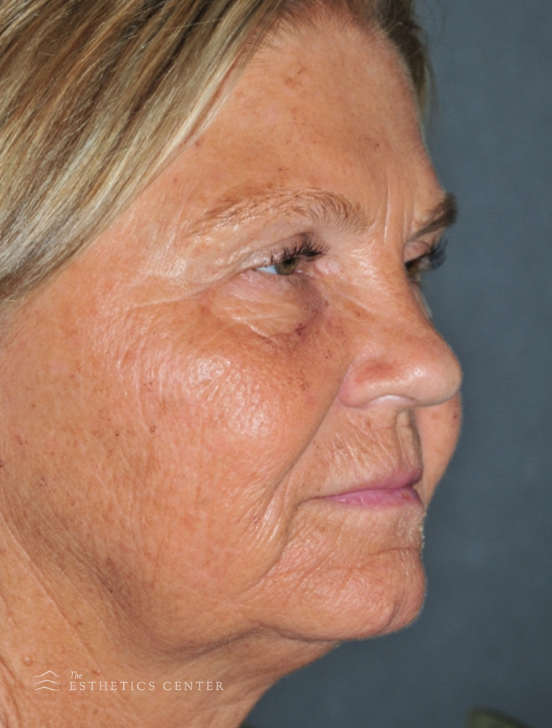 Facelift neck eyelid LSR - before.jpg